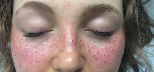 La malattia a cui il posto di pigmentary appare
